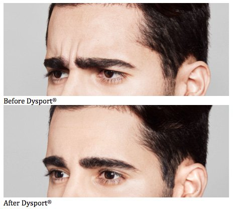 Dysport - Before and After 1