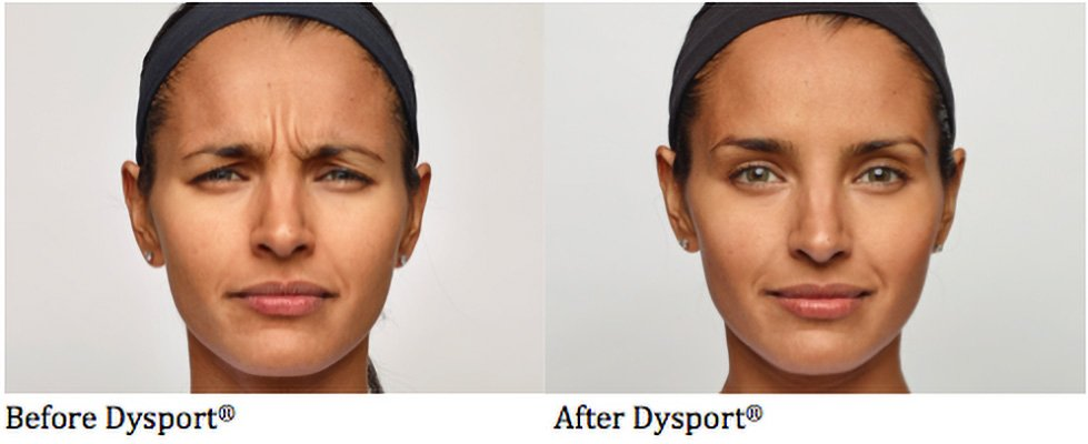Dysport-Before_After-2