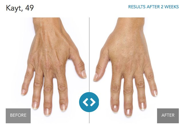 Hand-Rejuvenation-Before_After-1