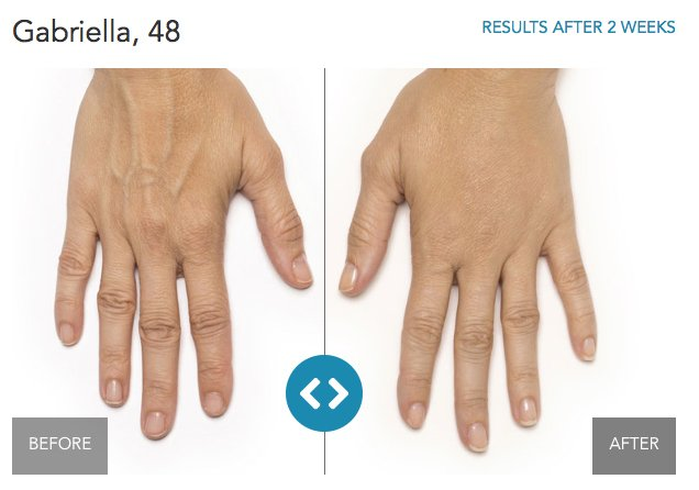 Hand-Rejuvenation-Before_After-2