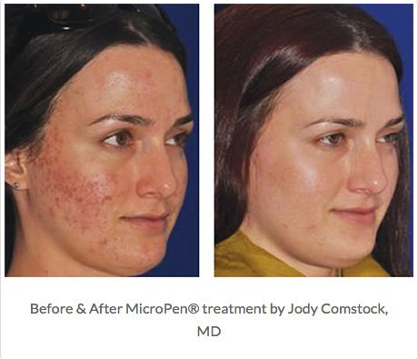 Micro-Needling-Before_After-1