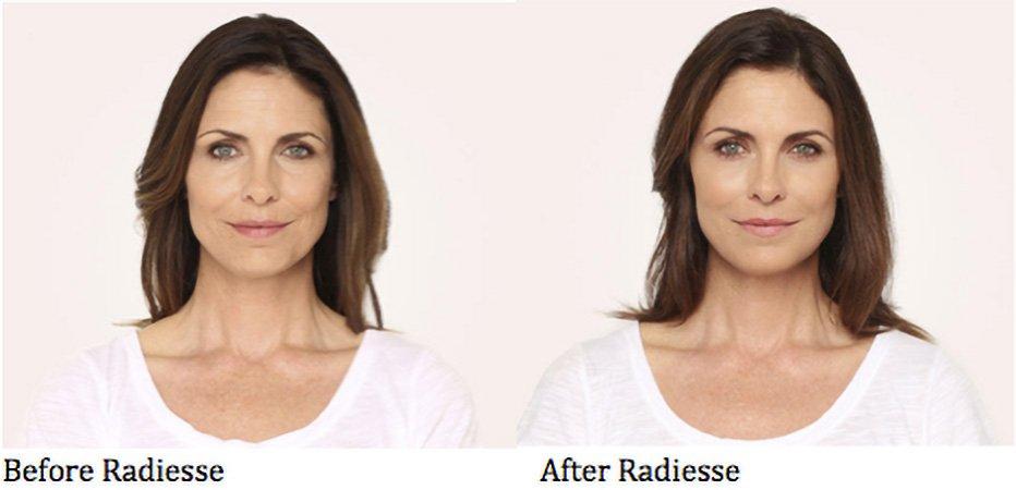 Before and After Radiesse