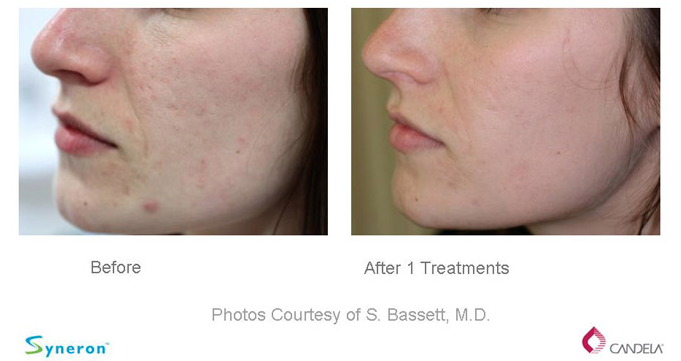 Before and After - Sublative Rejuvenation-eMatrix 1