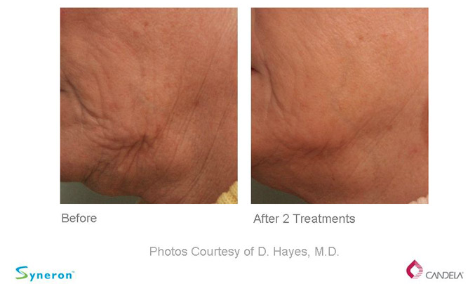 Before and After - Sublative Rejuvenation- eMatrix