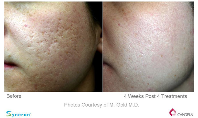 Sublative Rejuvenation - Before and After