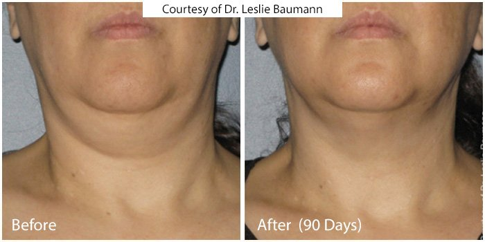 Before and After - Ultra Skin Tightening 1