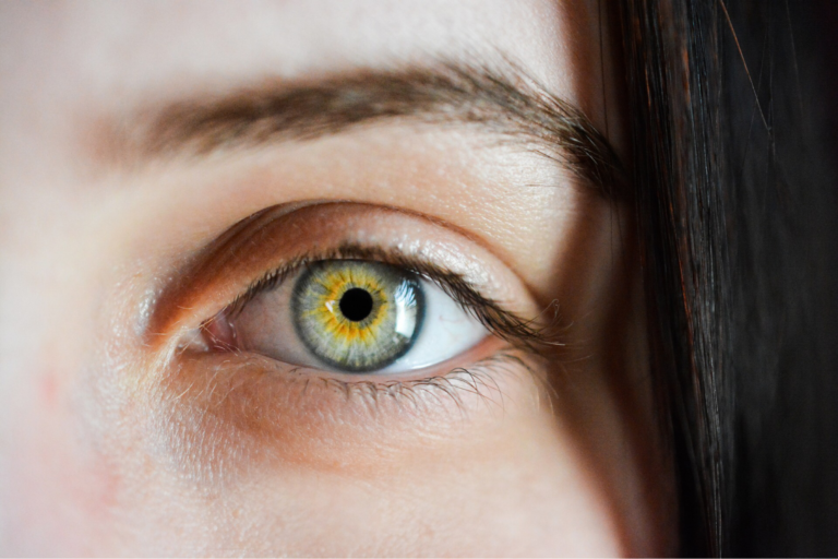 Read more about the article TOTAL EYE REJUVENATION IS POSSBILE AT MIAMI BEACH LASER & AESTHETICS!