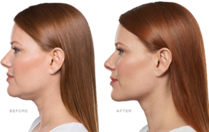 Read more about the article Say Goodbye To Your Double Chin With Kybella®!